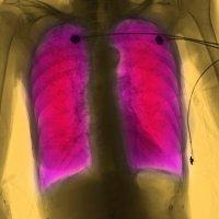 Hlavní obrázek - Dvouletý screeningový program vyhledává pacienty s CHOPN