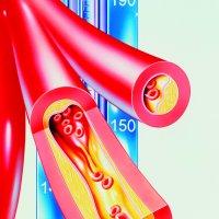 Hlavní obrázek - Metabolický syndrom je podle americké studie spojen s rekurencí žilní tromboembolie