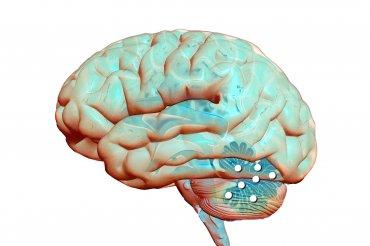 Hlavní obrázek článku - Pohled na roztroušenou sklerózu se vyvíjí