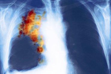 Hlavní obrázek článku - Onkologové: umíme lépe léčit než diagnostikovat