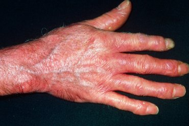 Hlavní obrázek článku - Systémová sklerodermie: vzácné onemocnění, o kterém se neví