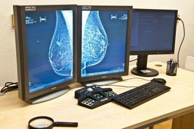 Hlavní obrázek - Vědci v Brně otestovali metodu pro určení podtypu rakoviny prsu