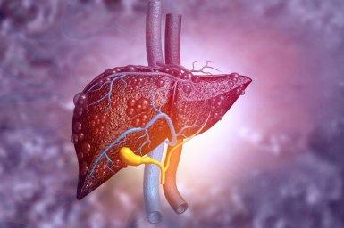 Hlavní obrázek - Poškodenie pečene po užívaní anabolických steroidov za účelom rastu svalovej hmoty – skúsenosti z hepatologického pracoviska