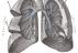 Hlavní obrázek - Lékaři v Brně vzali muži část plíce za pomoci mimotělního oběhu